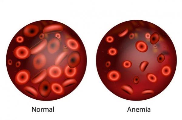 رفع کم خونی,عوامل کم خونی,کم خونی