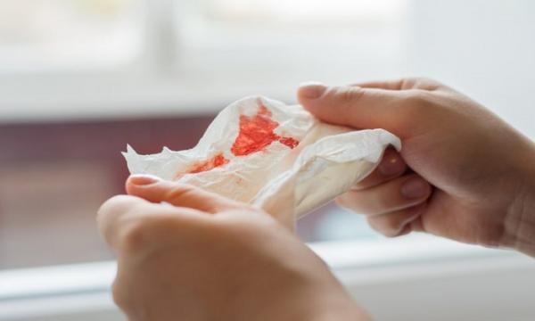 سرفه خونی,دلایل بروز سرفه خونی,راه های پیشگیری از سرفه خونی,آمبولی ریوی,بیماری سل