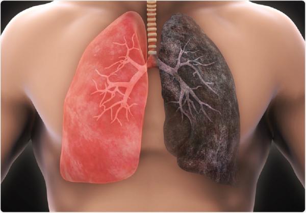 سرطان ریه,سرطان ریه علائم,درمان سرطان ریه