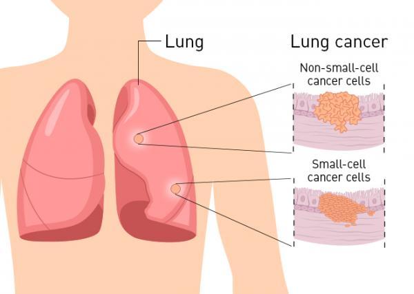 تشخیص سرطان ریه,انواع سرطان ریه,سرطان ریه