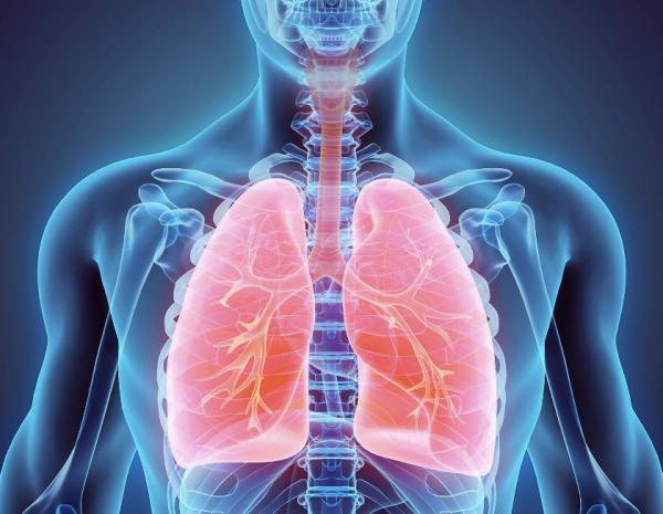 سرطان ریه,انواع سرطان ریه,علائم سرطان ریه چیست