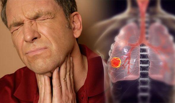 سرطان ریه علایم,سرطان ریه,مهمترین علت سرطان ریه