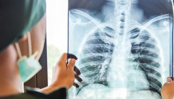 علایم سرطان ریه,سرطان ریه,شیمی درمانی سرطان ریه