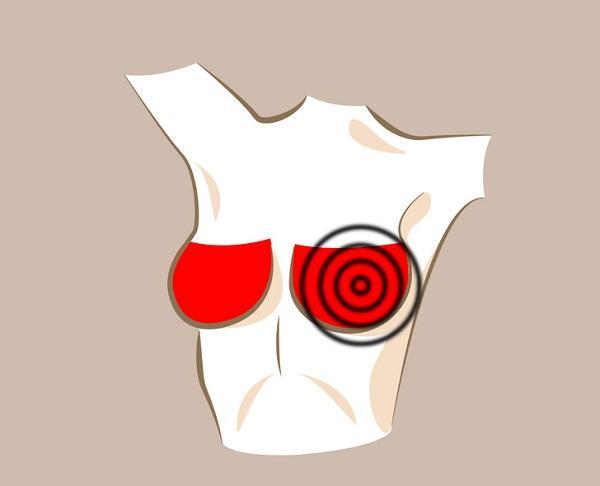 شانه های سرطان سینه,تغییرات در پستان ها طبیعی,دانستنی های پزشکی