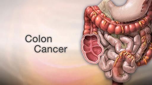 سرطان روده,نشانه های سرطان روده,درمان سرطان روده