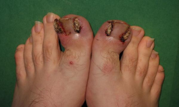 بررسی عفونت های قارچی پا,نشانه های عفونت های پا,بررسی رابطه دیابت و عفونت های پا