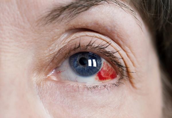 گلوکوم,علایم آب سیاه,آب سیاه چشم چیست