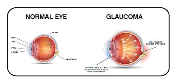 انواع بیماری آب سیاه چشم,انواع بیماری گلوکوم,گلوکوم زاویه بسته