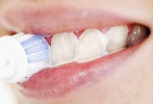 ترفندهای خانگی برای سلامت دندان,سلامت دندان,حذف لکههای سطحی دندان,راهکار خانگی سفید کردن دندانها,کیت سفید کننده دندان
