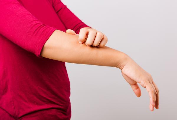 خارش پوست,راه کاهش خارش پوست,خارش پوست بدن