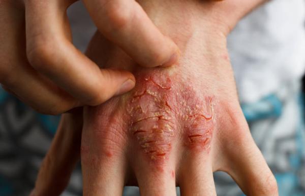 لکه خارش پوست قرمز,خارش پوست,علت و درمان خارش پوست