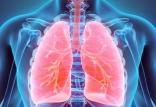 بیماری بلاستومیکوز,درمان بیماری بلاستومیکوز,علائم بیماری بلاستومیکوز