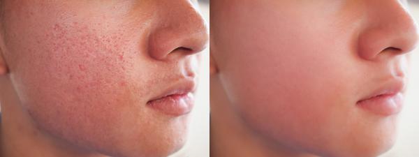 درمان منافذ باز پوست صورت با میکرودرم,درمان منافذ باز پوست به وسیله میوه ها,دلایل باز شدن منافذ باز پوست