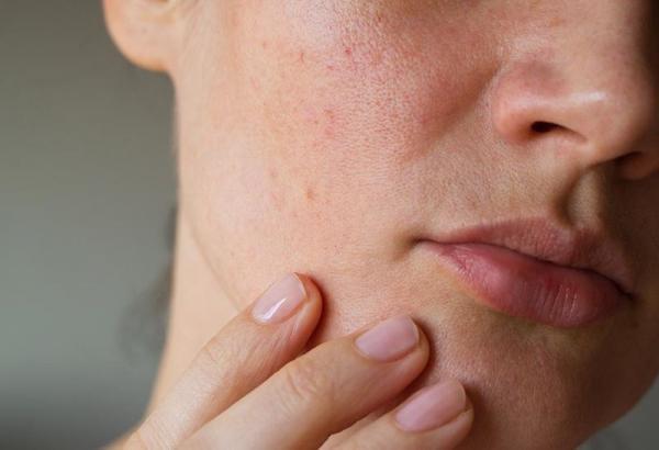 درمان منافذ باز پوست صورت,منافذ باز پوست,پیشگیری از باز شدن منافذ پوست