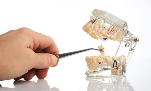 مراقبتهای پس از کشیدن دندان,کشیدندندان,حفظ بهداشت دهان و دندان,کشیدن دندان عقل,درمان های خانگی برای درد دندان