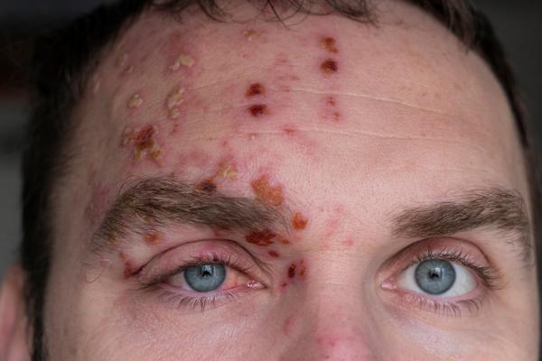 بیماری زونا چیست,زونا,ویروس زونا