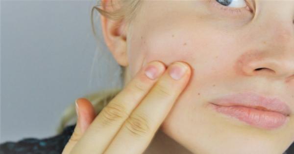 درمان سرطان پوست,شیمی درمانی برای درمان سرطان پوست,سرطان پوست