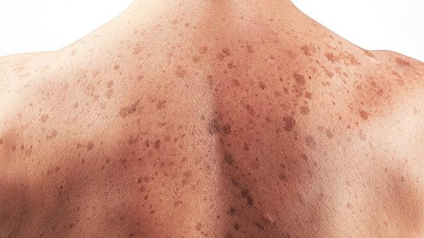 سرطان پوست,پرتو درمانی برای درمان سرطان پوست,راه های درمان سرطان پوست