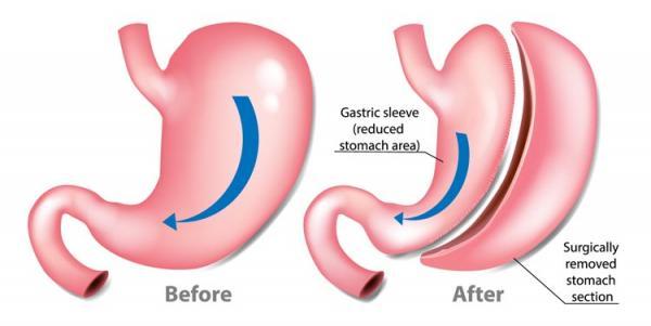 درمان بیماری چاقی,عوارض عمل اسلیو معده,اسلیو معده