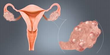 کیست تخمدان,کیست تخمدان و بارداری,کیست تخمدان در بارداری