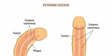 بیماری پیرونی,پیرونی,پیرونی چیست