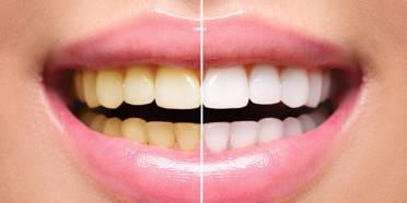 بلیچینگ دندان,بلیچینگ دندان چیست,بلیچینگ دندان در خانه