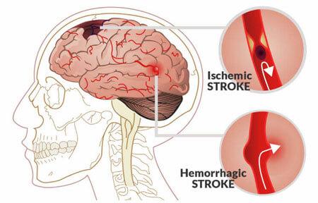 سکته مغزی,انواع سکته مغزی,علت سکته مغزی
