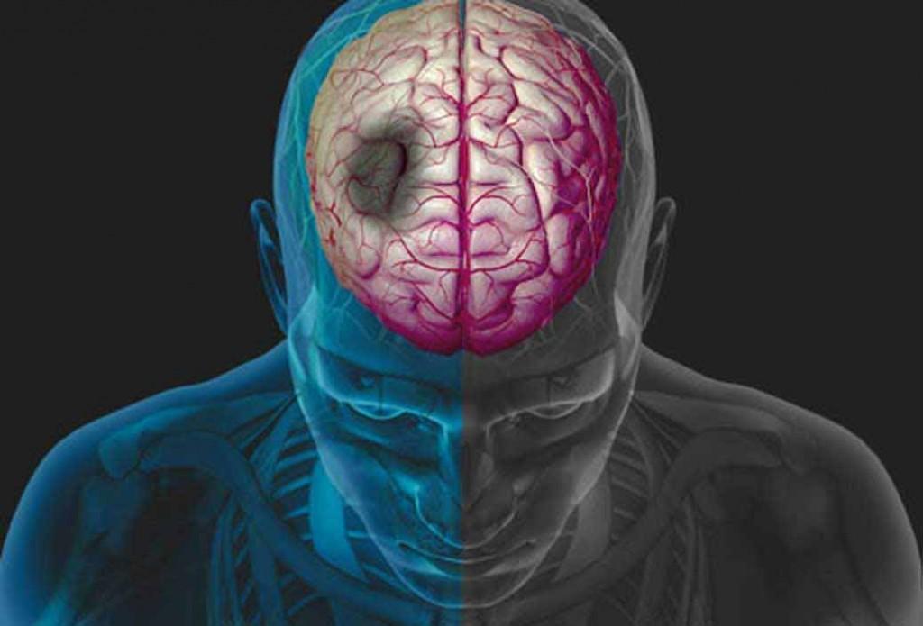 درمان سکته مغزی,عوارض آسیب های مغزی,علائم سکته مغزیی