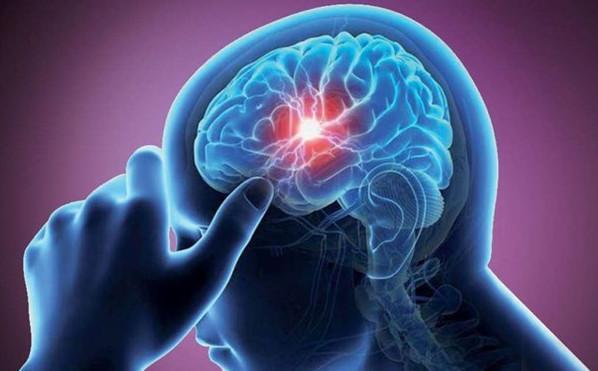 علت ضعف خفیف دست,علت تغییرات زودگذر در حالت چهره,سکته مغزی