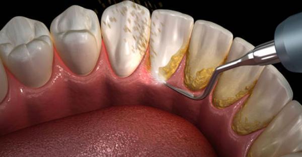 جرمگیری دندان,عوارض جرمگیری دندان,حساسیت در دندان ها با جرمگیری دندان