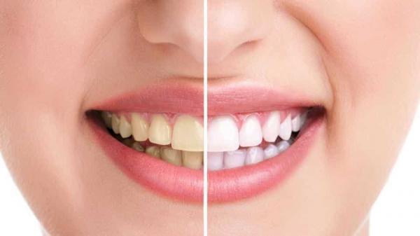 جرمگیری دندان,جرمگیری دندان چیست,آشنایی با جرمگیری دندان