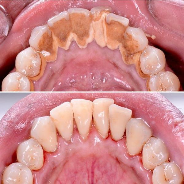 جرمگیری دندان,ابزار جرمگیری دندان,نکاتی درباره جرمگیری دندان