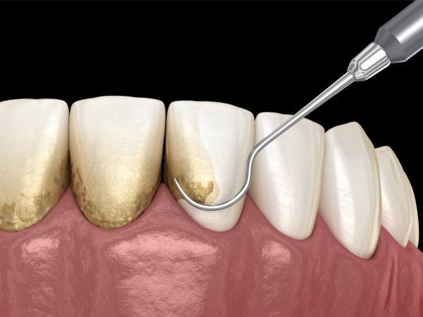 جرمگیری دندان با روش سنتی,فواید جرمگیری دندان,جرمگیری دندان