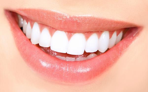 هزینه بلیچینگ دندان,دوام سفیدی دندان ها بعد از بلیچینگ,بلیچینگ دندان در خانه