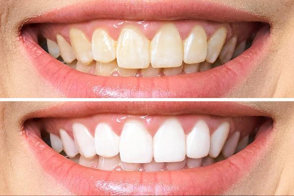 هزینه بلیچینگ دندان,بلیچینگ دندان چقدر دوام دارد,بلیچینگ دندان چیست