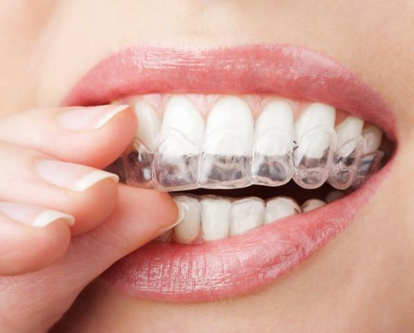 سفید کردن دندان ها در خانه,هوم بلیچینگ,بلیچینگ دندان