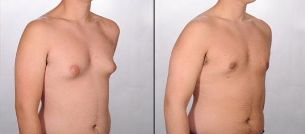 درمان بزرگی سینه مردان با ورزش,درمان ژنیکوماستی با ورزش,درمان بزرگی سینه در مردان