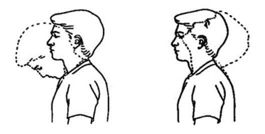روش درمان گردن درد با ورزش,انواع روش درمان گردن درد با ورزش,درمان گردن درد با ورزش