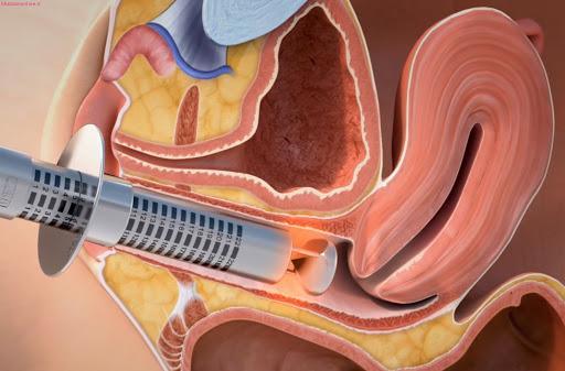 درمان گشادی واژن,درمان گشادی واژن با انجام ورزش کگل,علل گشادی واژن