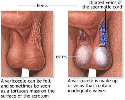 واریکوسل,درمان واریکوسل بدون جراحی,عوارض بیماری واریکوسل
