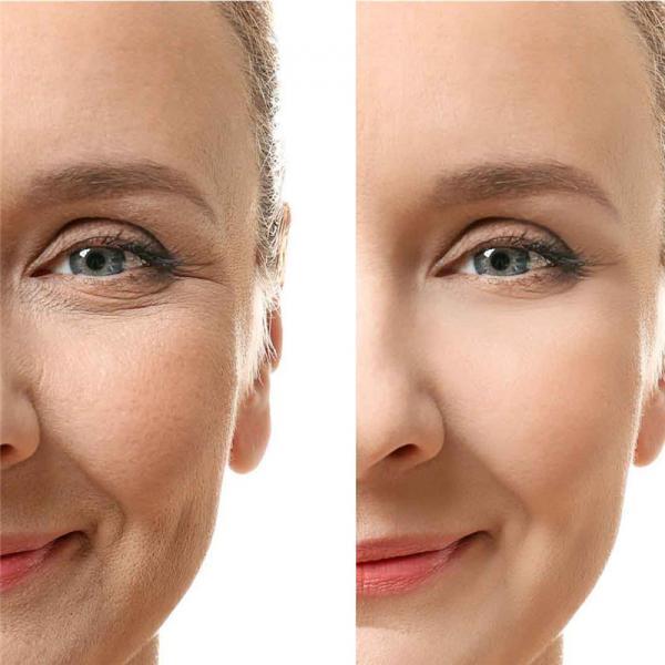 آبرسانی پوست صورت,آبرسانی پوست,راههای طبیعی مختلف برای آبرسانی پوست صورت
