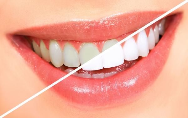 سفید کردن دندان,روش سفید کردن دندان,سفید کردن دندان به روش گیاهی