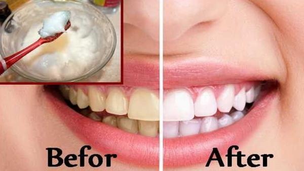 سفید کردن دندان,سفید کردن دندان با جوش شیرین,روشهای خانگی سفید کردن دندان