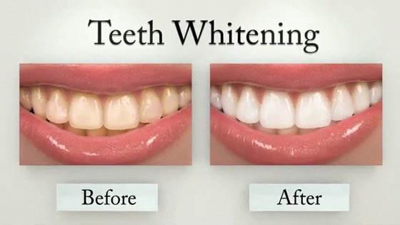 سفید کردن دندان,سفید کردن دندان در خانه,بلیچینگ