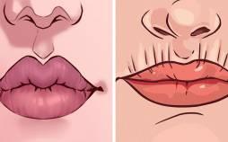 رابطه وضعیت لب ها با سلامتی,علت قرمز شدن دور لب ها,دلایل چروک شدن بالای لب ها