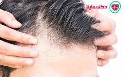 ریزش مو,دلایل ریزش مو,علل ریزش مو