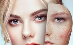 لک صورت,درمان لک صورت با داروهای گیاهی,کرم ضد لک صورت