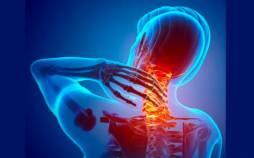 ورزش های آرتروز گردن,درمان آرتروز گردن با ورزش,ورزشهای آرتروز گردن