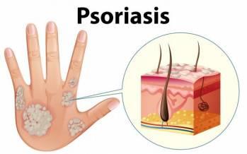 پسوریازیس,پسوریازیس پوست سر,پسوریازیس درمان